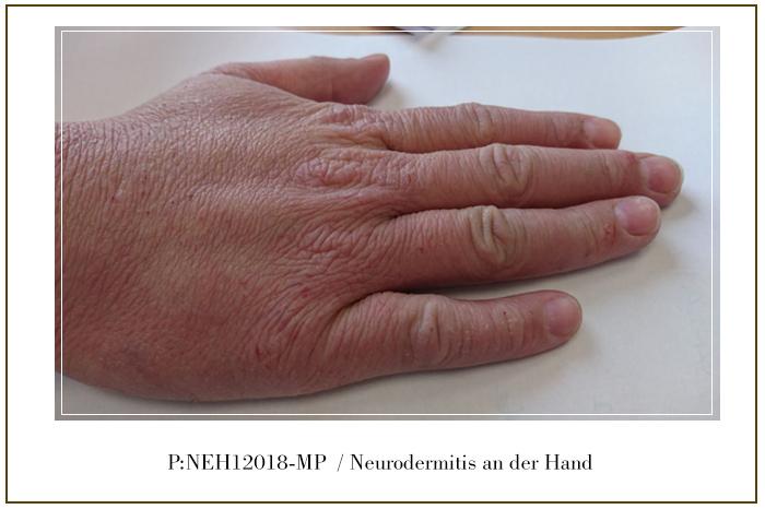 Neurodermitis in der Hand